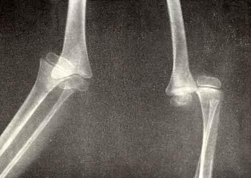 Лечении эффективно использование лазера без лечении суставов